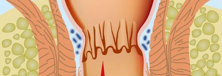 Растрескивание кожи анального отверстия