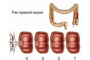 rak-pryamoj-kishki-stadii