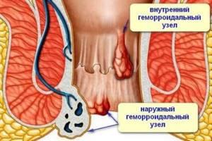 Причины появления анальной трещины