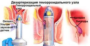 Важность лечения послеродового геморроя