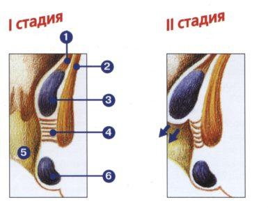 Стадии и симптоматика