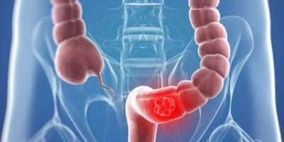 Особенности органа и его заболевания