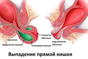 Особенности заболевания и причины его возникновения