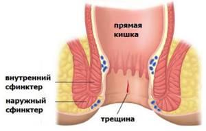 Симптомы трещин в заднем проходе