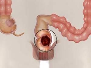 Симптомы и методы лечения патологий прямой кишки