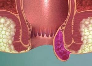 Надо ли удалять наружные геморроидальные узлы?