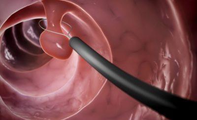 Особенности колоноскопии кишечника фото