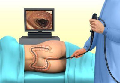Что такое колоноскопия и когда она нужна