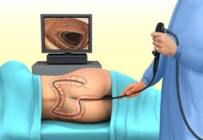 Особенности колоноскопии кишечника