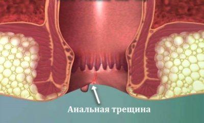 Кровь с заднего прохода у женщин – наиболее распространенные причины