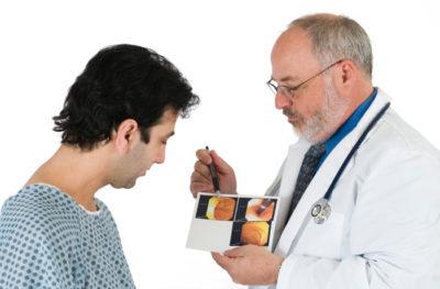 Полип в заднем проходе: симптомы и лечение фото