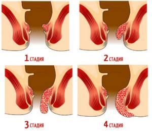 Признаки и симптомы заболеваний прямой кишки у женщин и мужчин