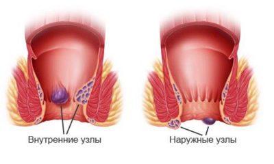 Нужно ли знать, почему воспаляется геморроидальный узелок?