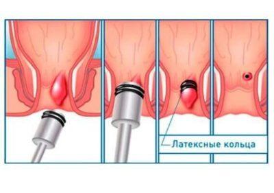 Лечение геморройных узлов малоинвазивными методам