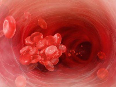 Признаки и симптомы заболеваний прямой кишки у женщин и мужчин фото