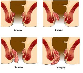 Причины пульсирующих болей в заднем проходе фото