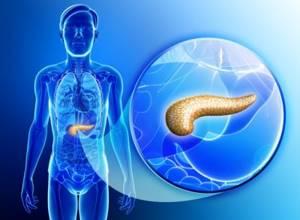 На какие разновидности делится острый панкреатит?