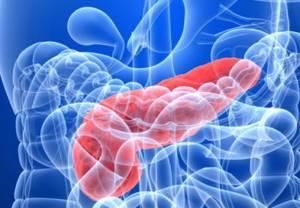 Как прогрессирует воспаление в поджелудочной?