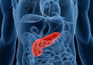Разновидности острого панкреатита
