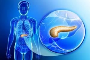 Разновидности панкреатита