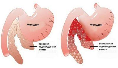 Хронический панкреатит температура субфебрильная