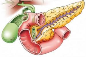 Билиарный панкреатит – что это такое