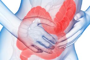 Признаки синдрома раздраженной толстой кишки
