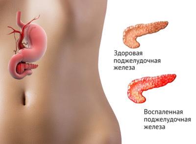 Панкреатит и его развитие